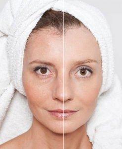 Anise-Rosehip-Serum-Best-Anti-Aging-Skin